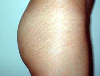 eliminacion de estrias en la piel:
