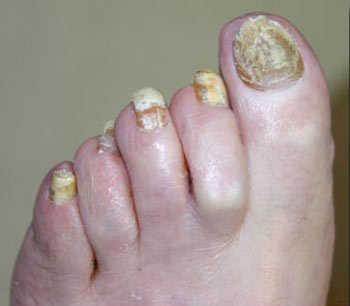 La crema el ungüento para el tratamiento de las micosis de las uñas
