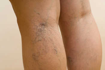 New treatments to remove varicose veins