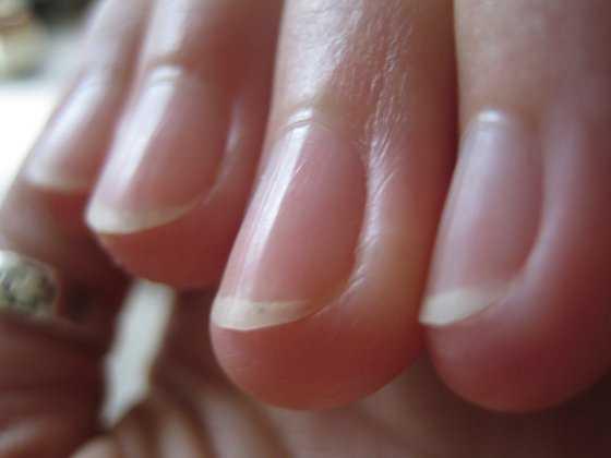 Corta tus uñas al ras de la piel, para no tener ningún inconveniente