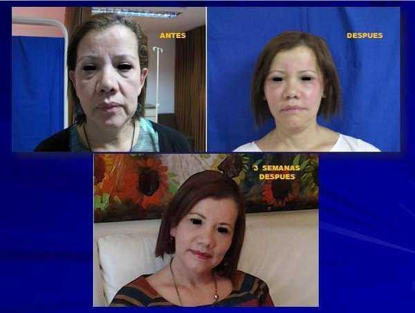 Rejuvenecimiento facial con células madres