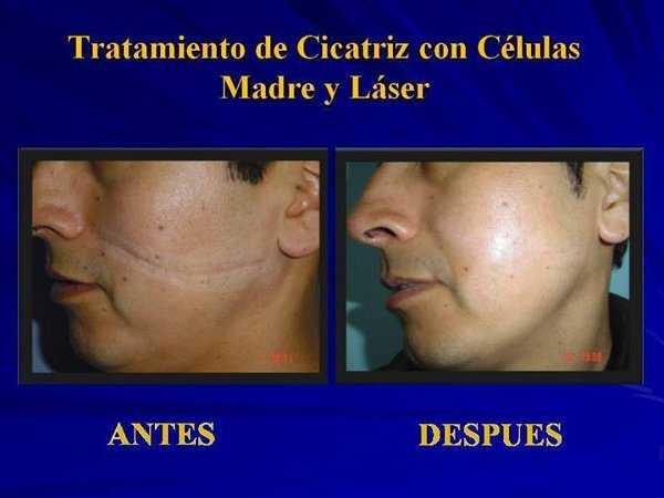 Eliminación de cicatrices con células madres